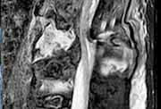 Morbus Bechterew Entzündung im Rücken