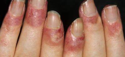 Lupus Finger Haut